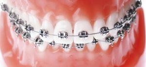 ortodontia clinica drummond